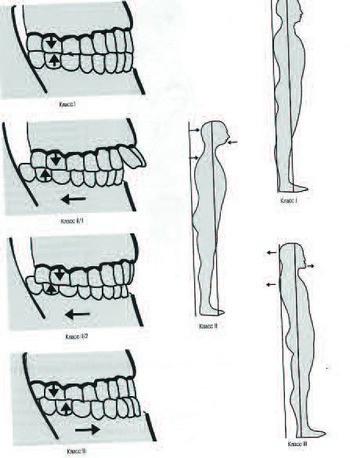 Положение нижней челюсти рис.2