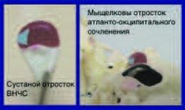 Конгруэнтность мыщелка атланто-окципитального сочленения и суставного отростка ВНЧС рис.4