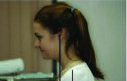 """Пациент с """"передним положением головы"""": шея смещена вперед,голова запрокинута назад рис.5"""